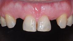 agenesia incisivi laterali